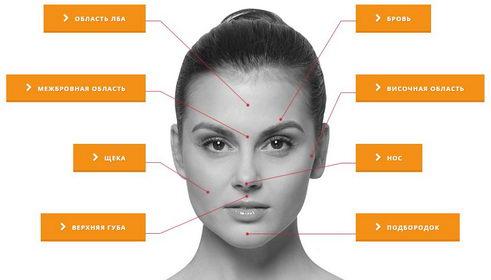 зоны эпиляции на лице