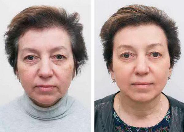 пилинг Pleyana фото до и после