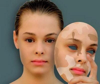 пигментация кожи от стреса